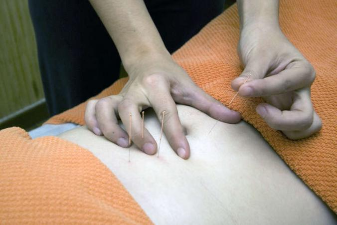L&I approves acupuncture for workers compensation claims