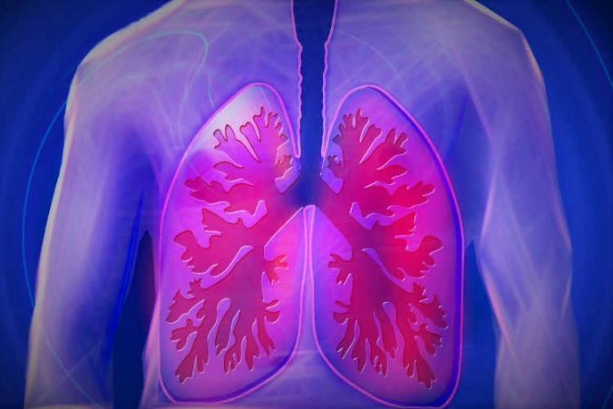 L-and-I claim for lung and respiratory problems