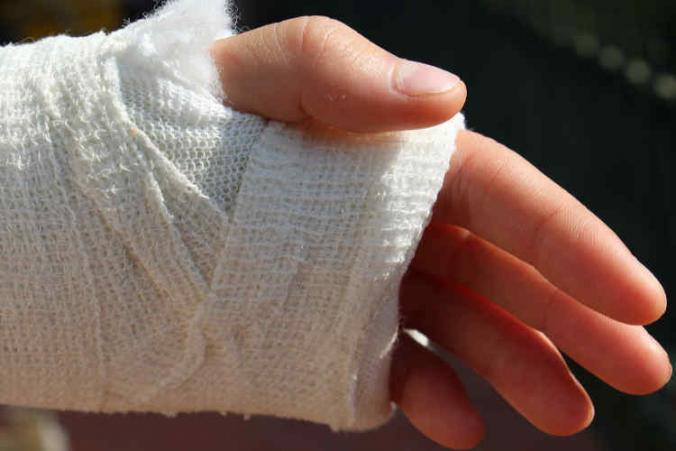 l-and-i-claim-for-hand-injury